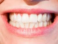 7 Cara Memutihkan Gigi Yang Kuning Secara Alami