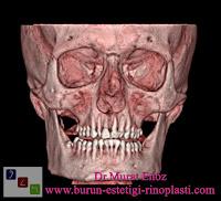 Deviasyon Ameliyatı Öncesinde Tomografi Çekilmesi Her Zaman Gerekli Değildir!