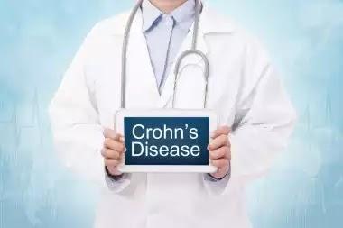 Crohn's Disease and Stress