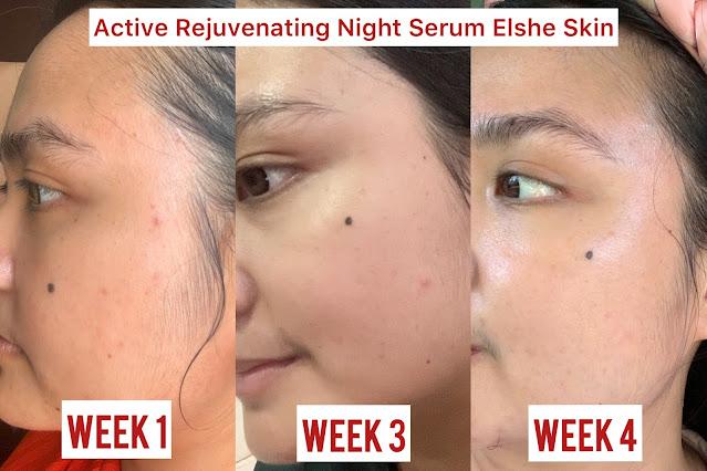 ELSHE SKIN ACTIVE REJUVENATING NIGHT SERUM REVIEW