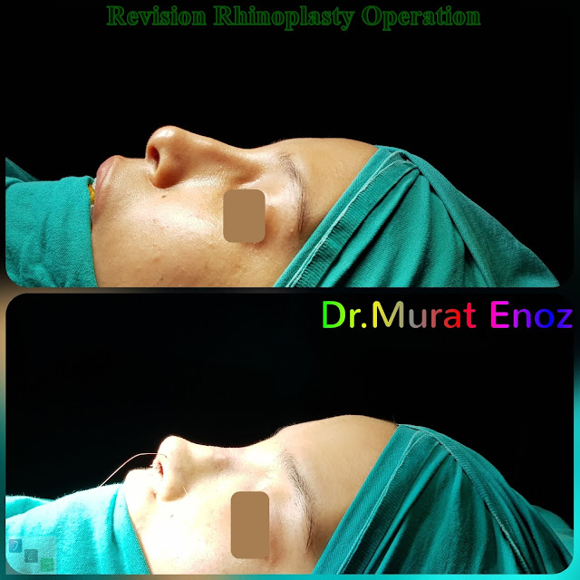 revision rhinoplasty in istanbul