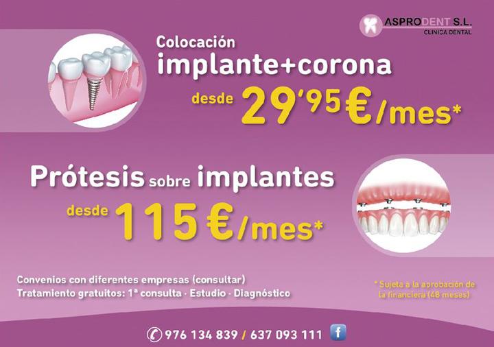 Promoción Asprodent Colocación Implante + Corona