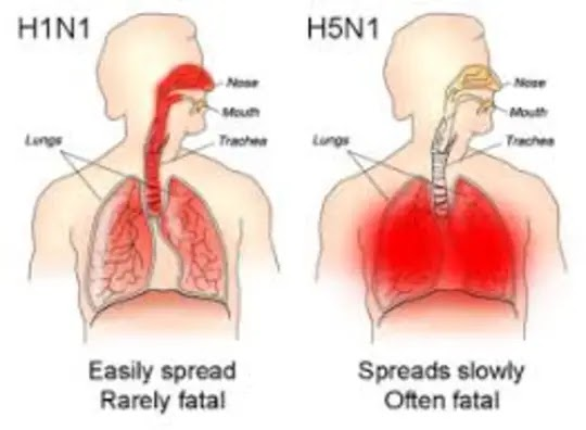 What is influenza and its symptoms with treatment explained 2020