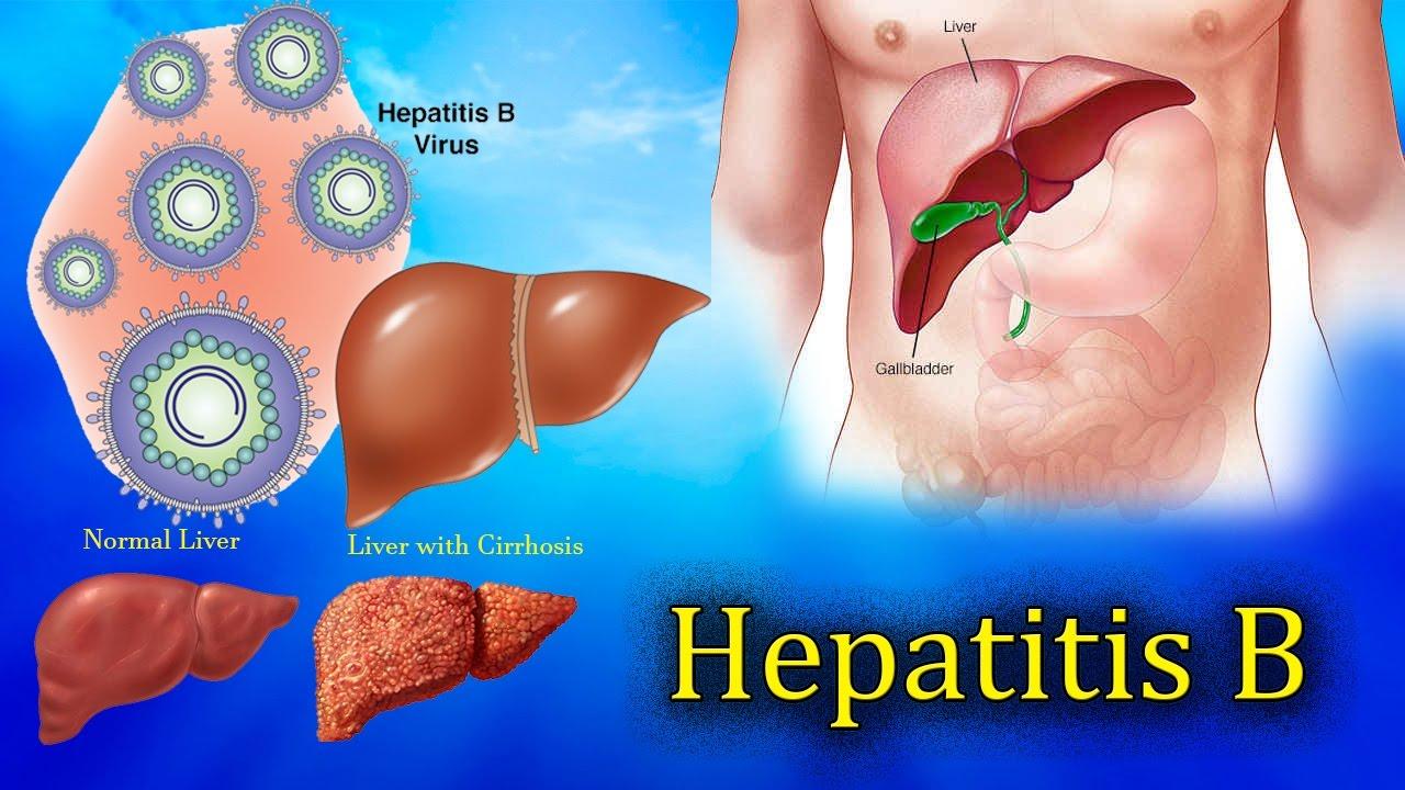 Hepatitis B Herbal Cure: Home