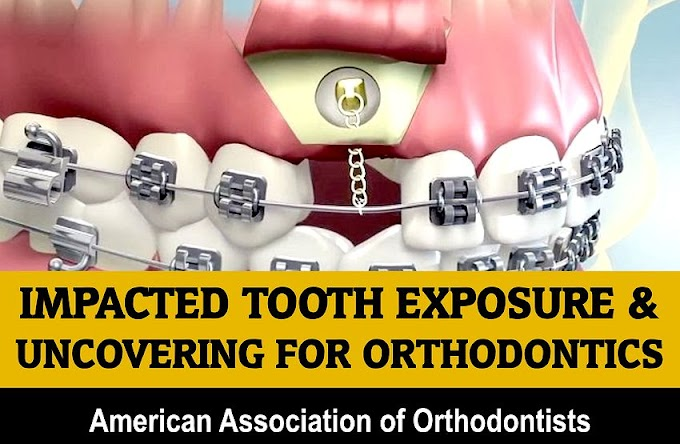IMPACTED TOOTH: Exposure & Uncovering For Orthodontics