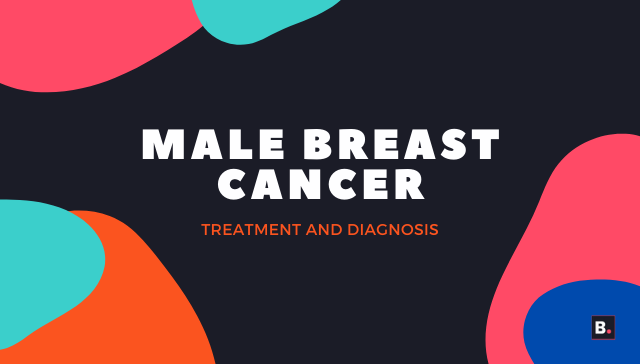 male breast cancer - treatment and diagnosis