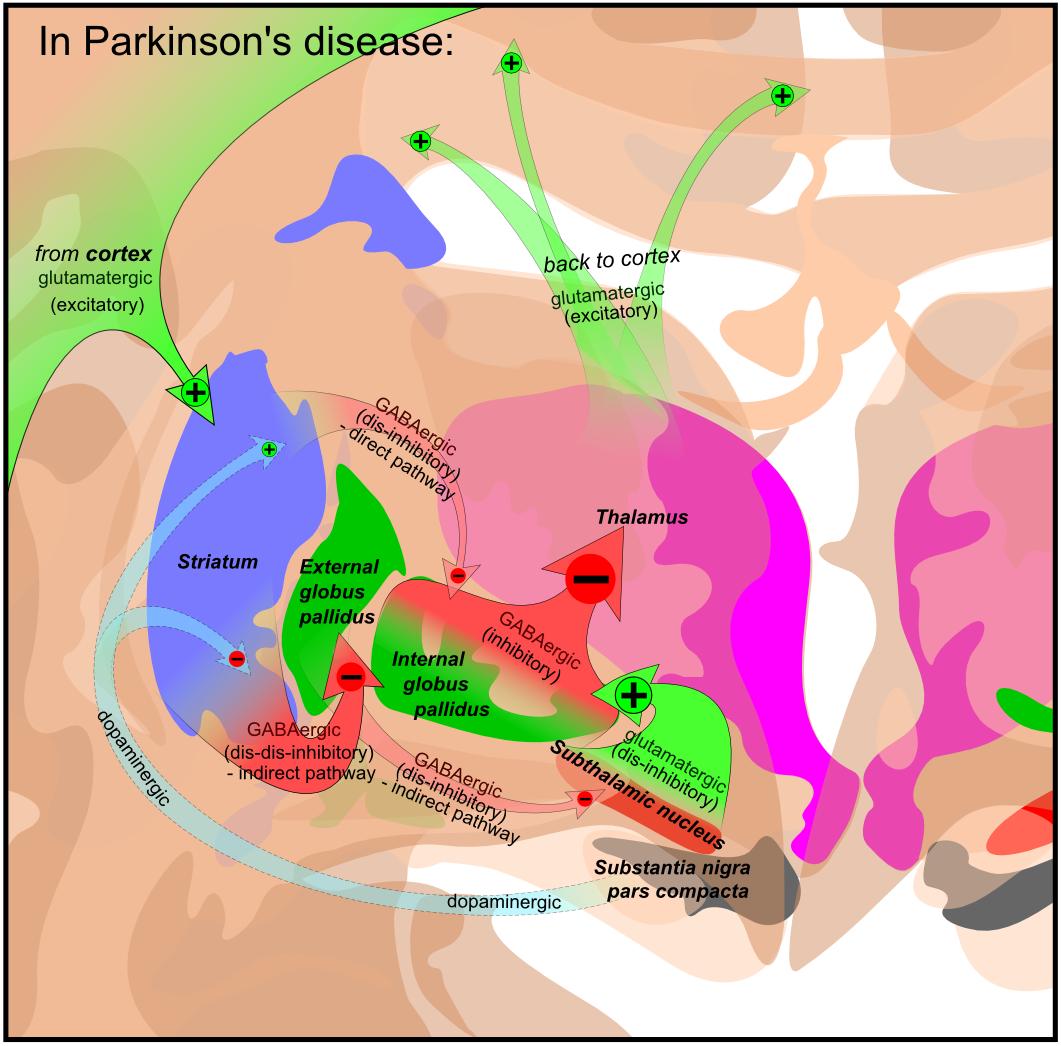 parkinsons - parkinsons disease - parkinsonism ...