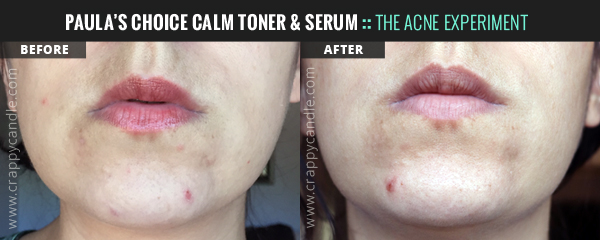 Paula's Choice CALM Toner & Serum Before/After - The Acne Experiment
