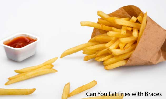 Can You Eat Fries with Braces
