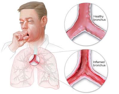 Obat Herbal Bronkitis Paling Ampuh Aman Dan Alami