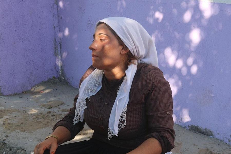 Diyarbakır Bismil'de boynunda ip iziyle ölü bulunan kızın annesi konuştu