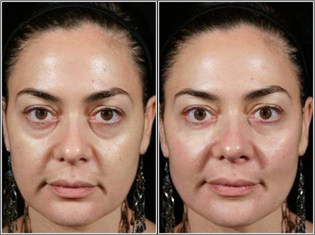 Instant Treatment Of Dark Circles Or Bags Under Eyes