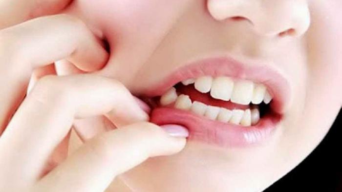 Petua atasi sakit gigi.