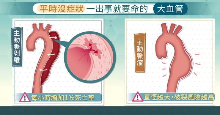 平時沒症狀,一出事就要命的大動脈