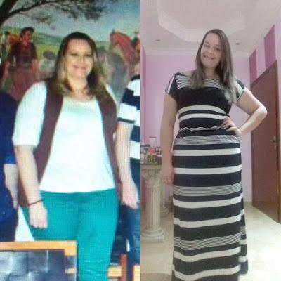 Foto da paciente Stephanie, mostrando o antes e depois do seu corpo, com 65kg a menos, depois de colocar balão intragástrico