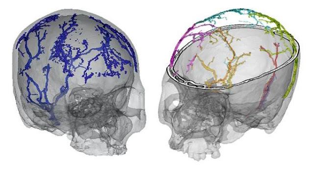 Study analyzes the growth and development of the diploic veins in modern humans