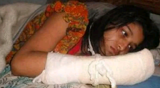 A woman with a bandaged right hand