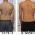 脊椎側彎矯正運動 - 您做對了嗎?