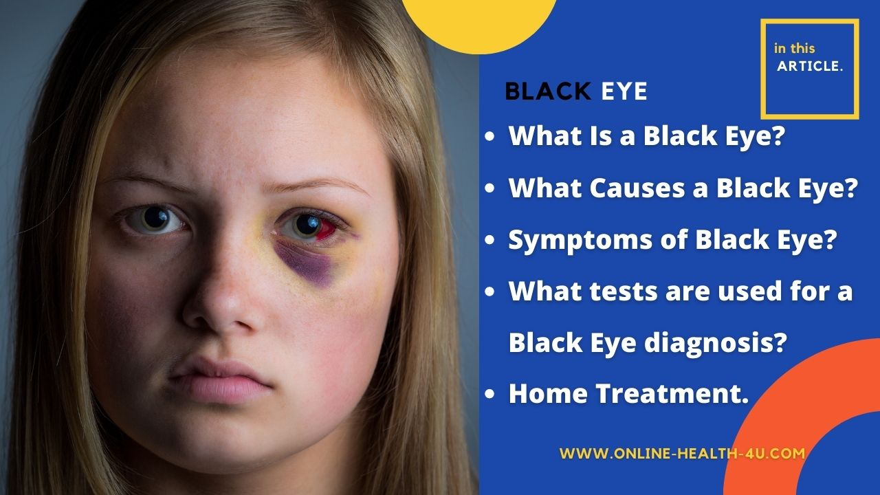 What is Black Eye | Causes and Symptoms Black Eye | Home Treatment 2021