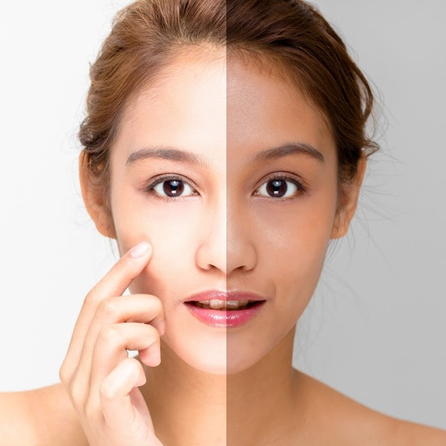 Do Home Remedies Work For Skin Whitening?