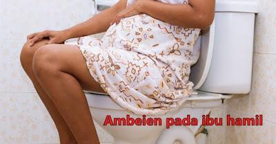Cara Mengobati Wasir Pada Ibu Hamil Secara Alami