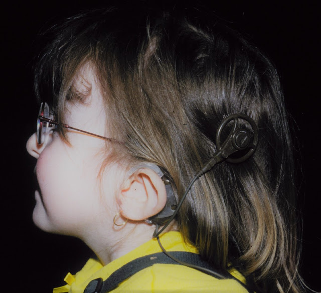 Foto de una niña con Síndrome de Charge e implante coclear