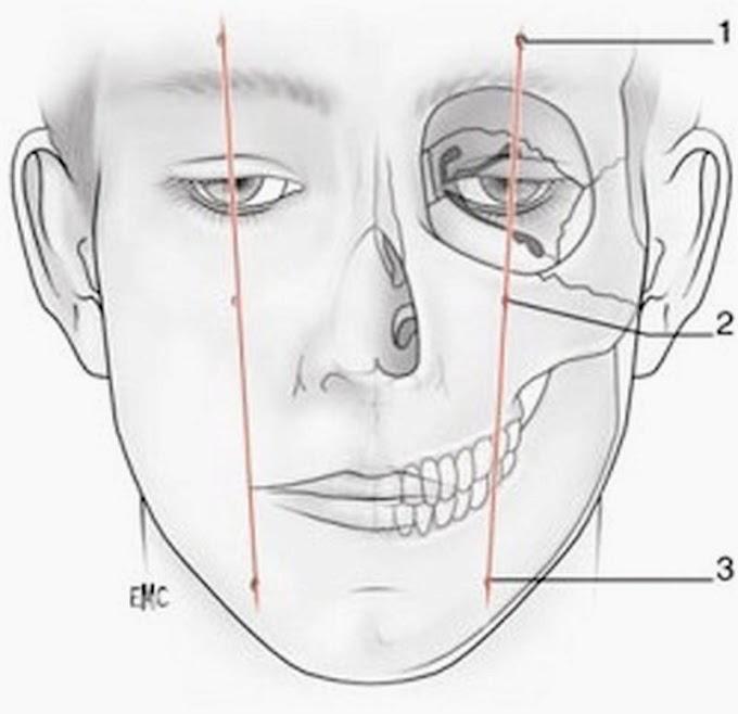 ANESTESIA INFRAORBITARIA. Técnica y referencias anatómicas