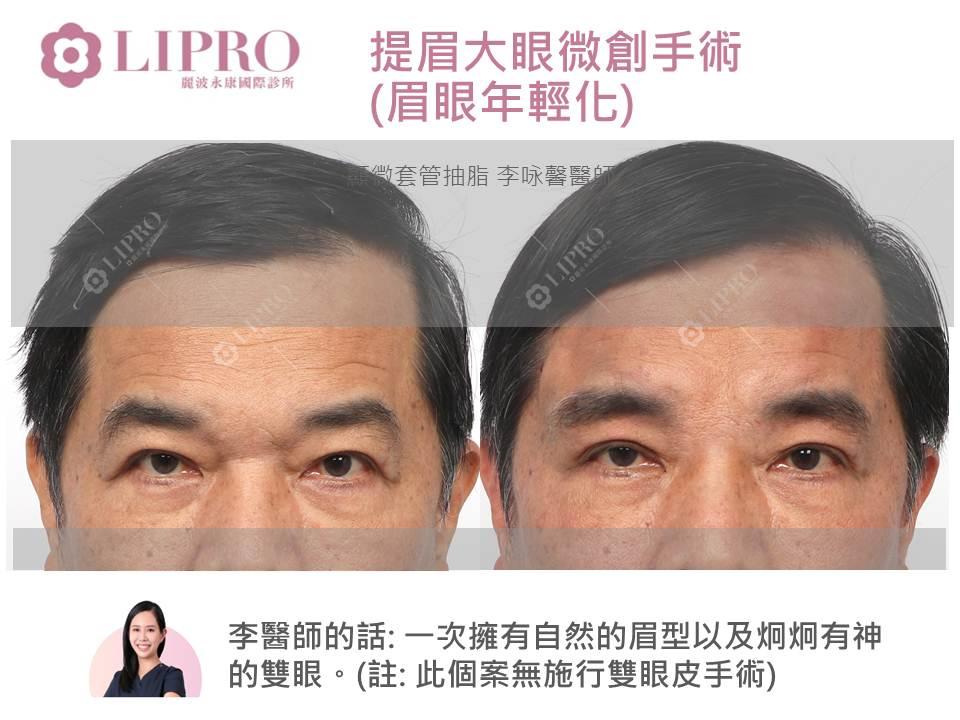 前額拉提 顯微隱痕 提眉 大眼微創手術