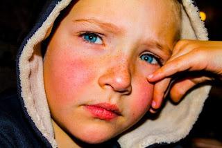 gambar Cara efektif sembuhkan luka pada wajah anak