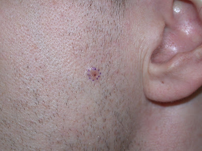 basal cell carcinoma photos