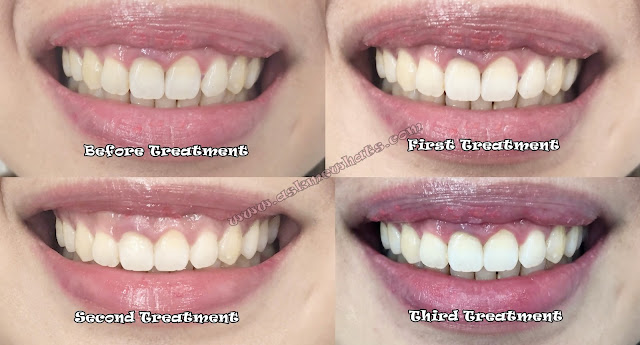 before and after photo of The Smile Bar Triple Whitening_askmewhats