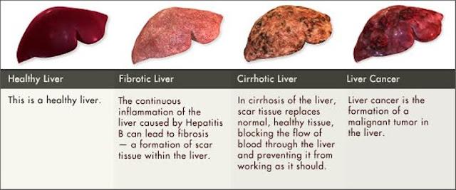 aids treatment liver damage - 640×267