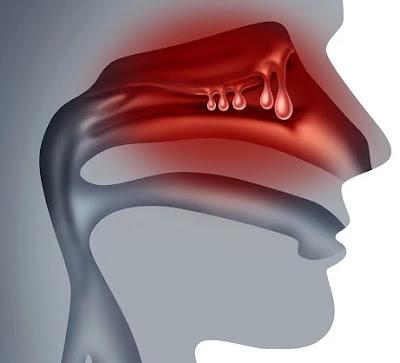 Comment guérir les polypes nasaux naturellement