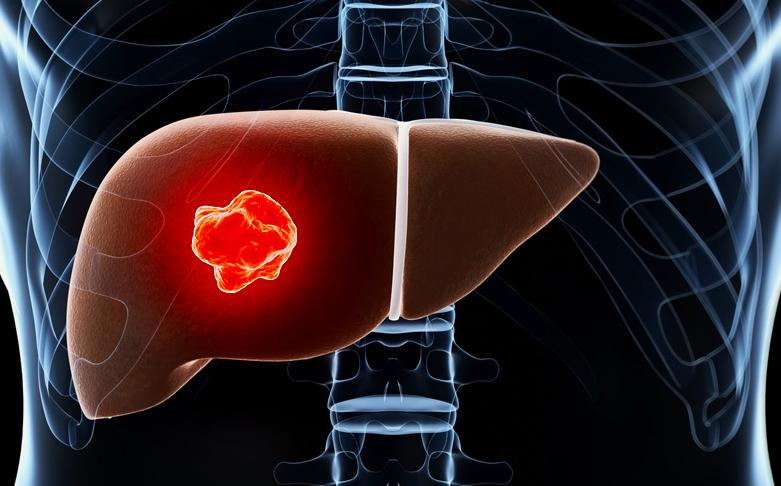 Secondary Liver Cancer Survival Rates