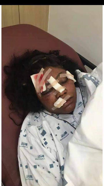 Young lady brutally beaten by her boyfriend in South Korea few week after their engagement (photos)