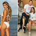 Miss Colômbia tem perna amputada após cirurgia no estômago