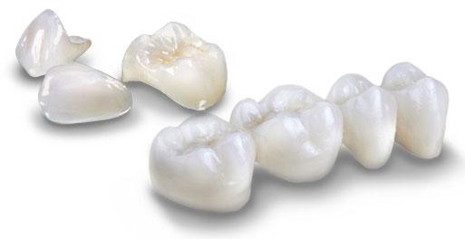 lava premium dental crown and bridge