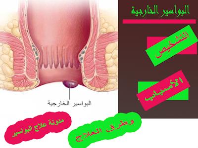 البواسير الخارجية (التشخيص, الاسباب , العلاج)