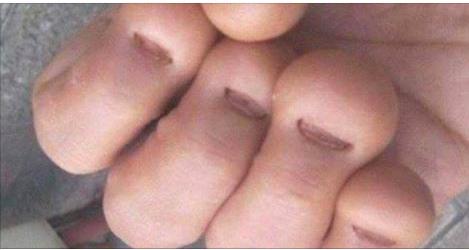 Cet homme s'est rongé les ongles. Il est mort peu de temps après.