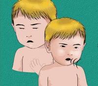 Penyebab dan faktor risiko Pneumonia balita