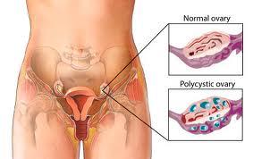 GLA Complex shaklee vitamin untuk wanita mengidap PCOS