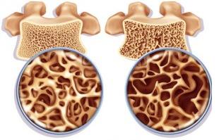 Дефицит кальция приводит к остеопорозу