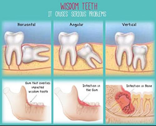 Wisdom Tooth Surgery Krishna Dental Clinic