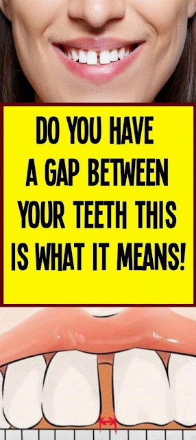 Do You Have A Gap Between Your Teeth? This Is What It Means!