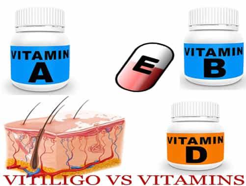 vitiligo versus vitamins