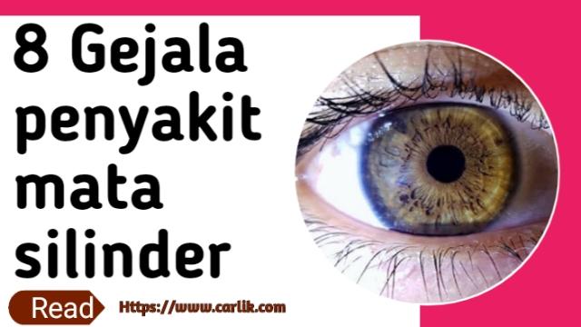 Gejala penyakit mata silinder