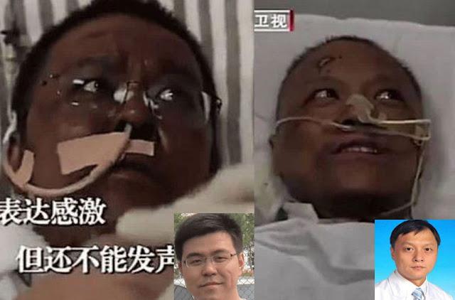 Kulit 2 Dokter di Cina Menghitam Usai Pemulihan Covid-19