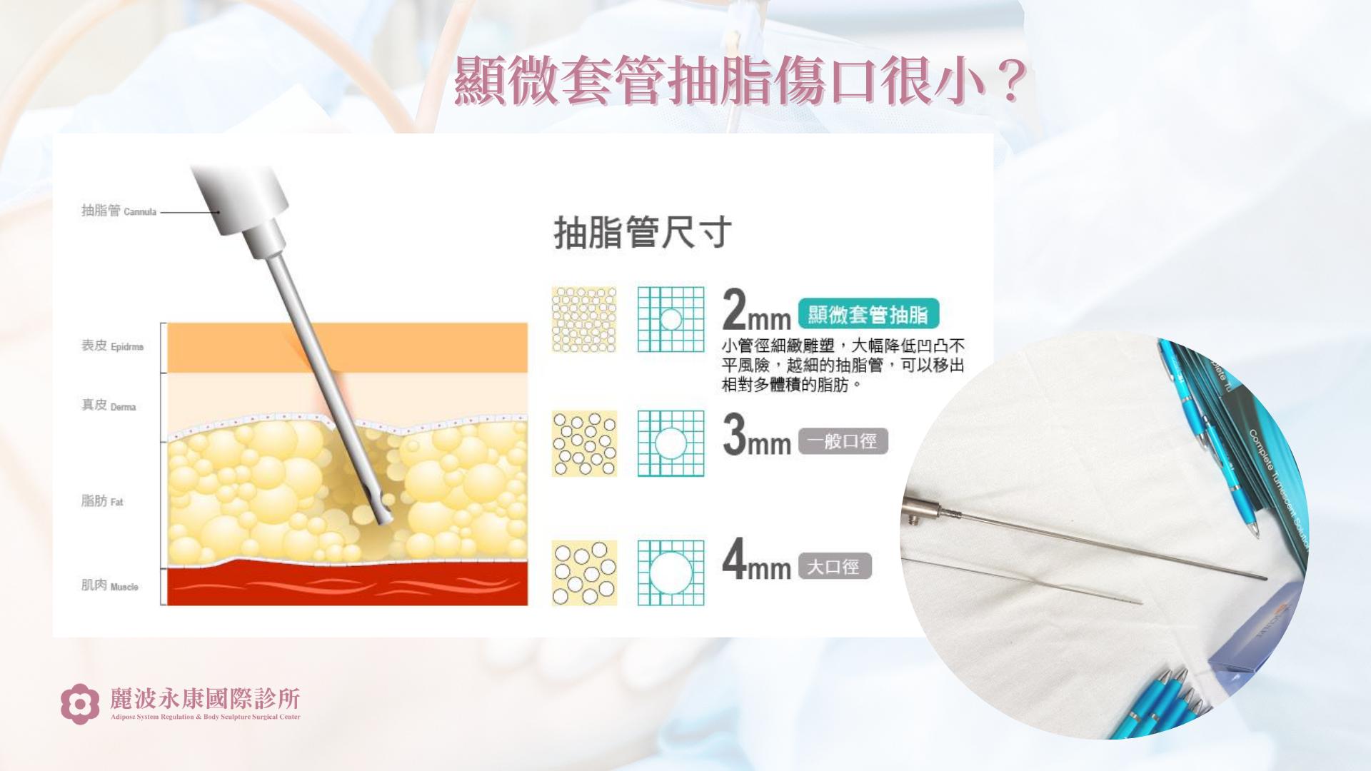顯微套管抽脂是什麼 抽脂不穿塑身衣 抽脂不凹凸不平 抽脂局部麻醉