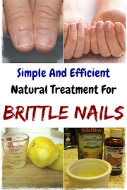 Simple And Efficient Natural Treatment For Brittle Nails