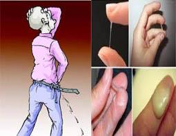 Cara hilangkan Kemaluan pria keluar nanah dan sakit Ketika kencing